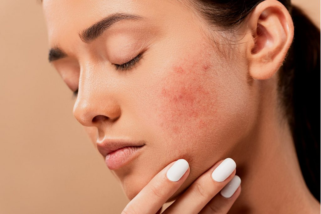 caucasian woman with acne on her cheek